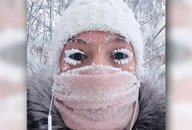 It's So Cold In Russia, Eyelashes Are Freezing
